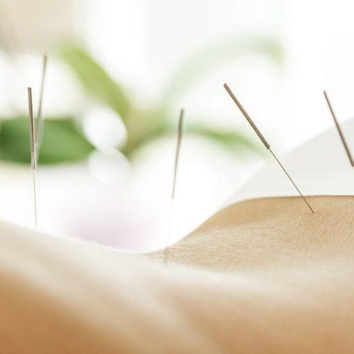 L'acupuncture peut-elle aider à perdre du poids